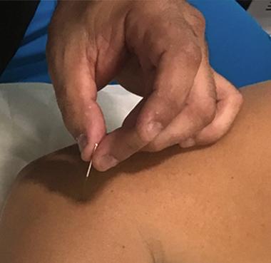 puncion-seca-vilaterapia